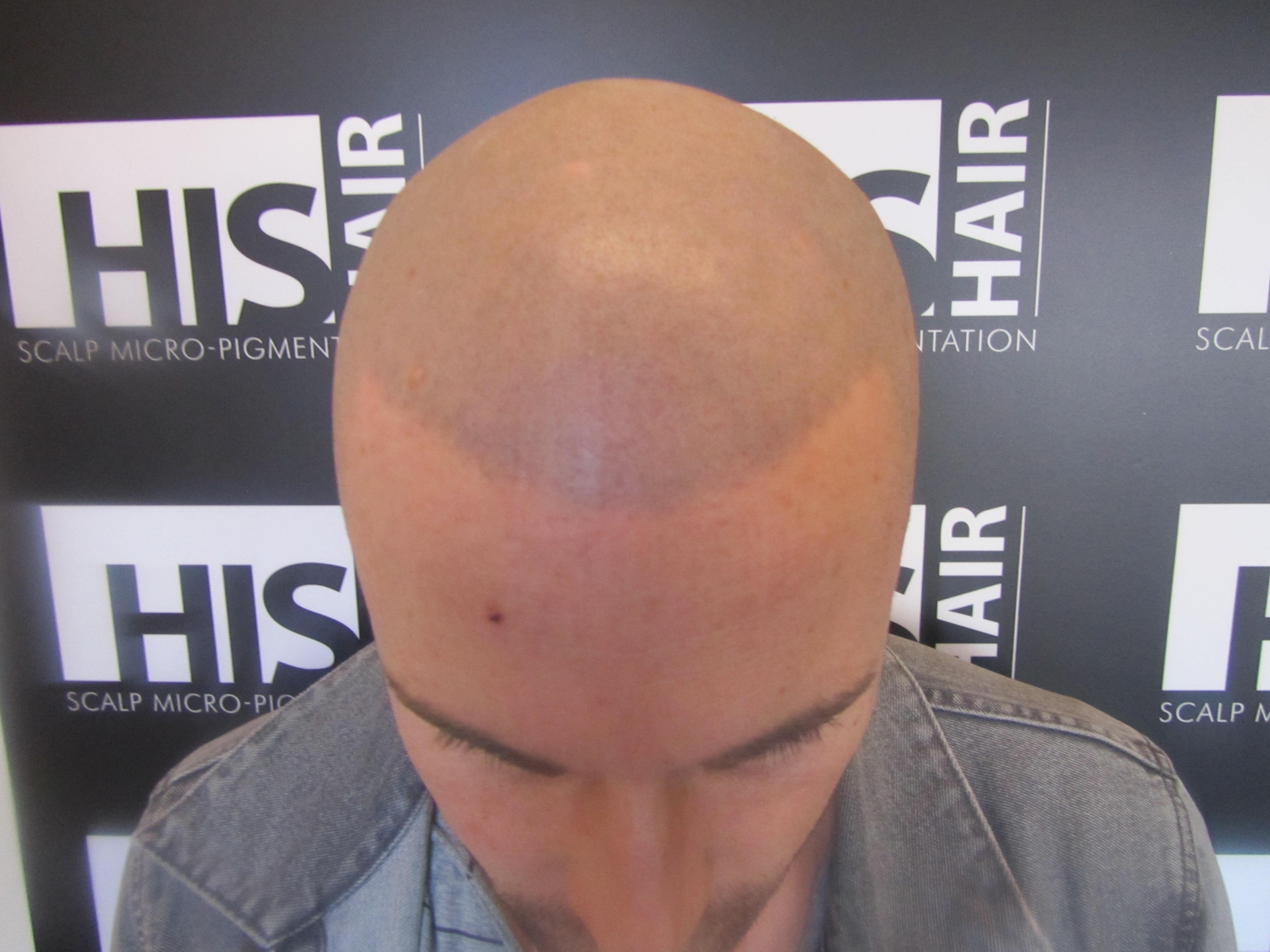 tatouage sur la tete repousse cheveux